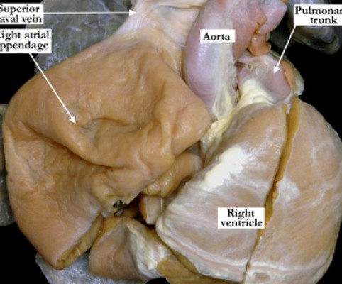 05-01-12-congenital-giant-right-atrium-p1