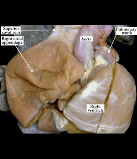 05.01.12-Congenital-giant-right-atrium-P1-vf