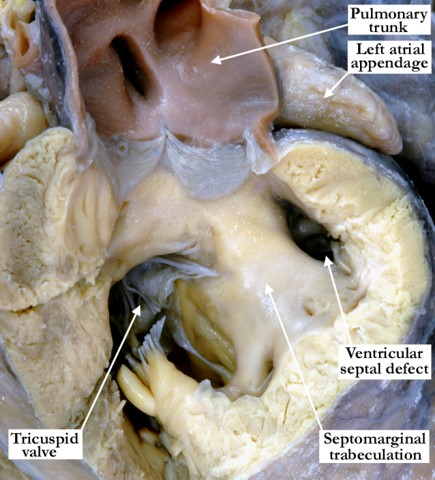 07-11-01 Muscular trabecular ventricular septal defect