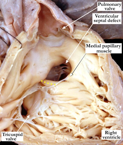 07-11-14 Muscular outlet ventricular septal defect