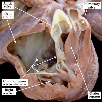 01-01-20-atrioventricular-septal-defect-and-tetralogy-of-fallot-atrioventricular-canal-and-tetralogy-of-fallot