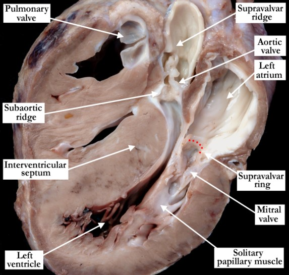 01-01-33 Left heart obstruction at multiple sites (including Shone syndrome)