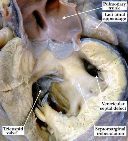 07-11-01 Muscular trabecular ventricular septal defect