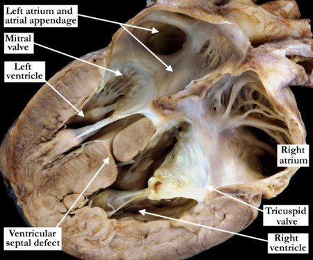 07-15-02 Ventricular septal defect: Hemodynamically insignificant